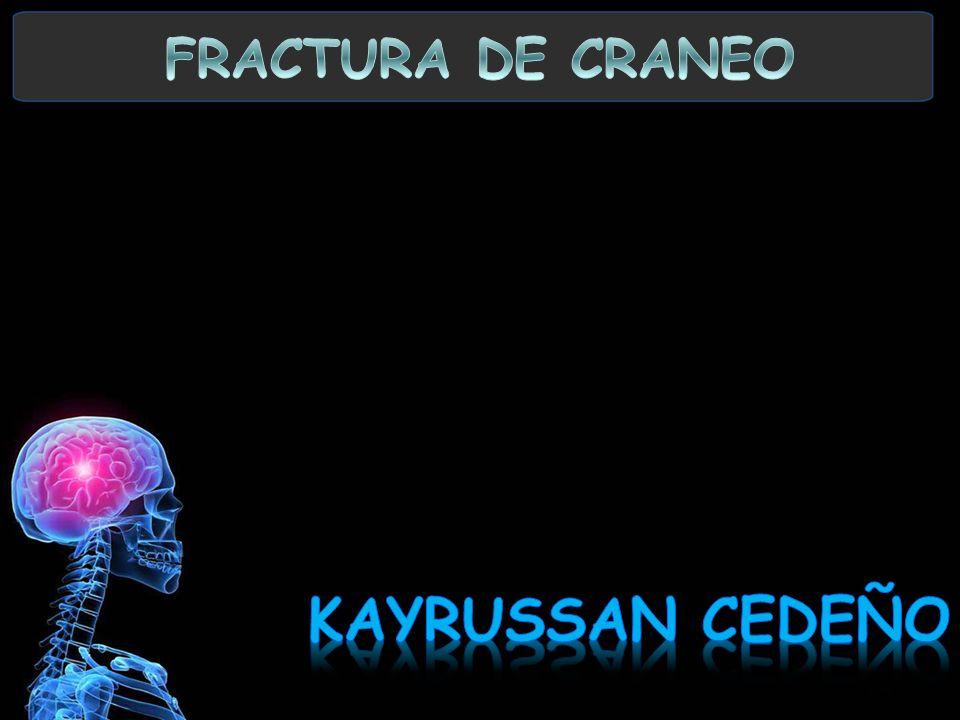 FRACTURA DE CRANEO KAYRUSSAN CEDEÑO