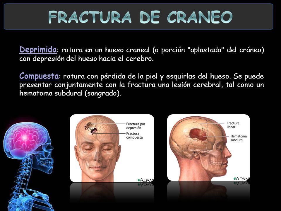 FRACTURA DE CRANEO Deprimida: rotura en un hueso craneal (o porción aplastada del cráneo) con depresión del hueso hacia el cerebro.