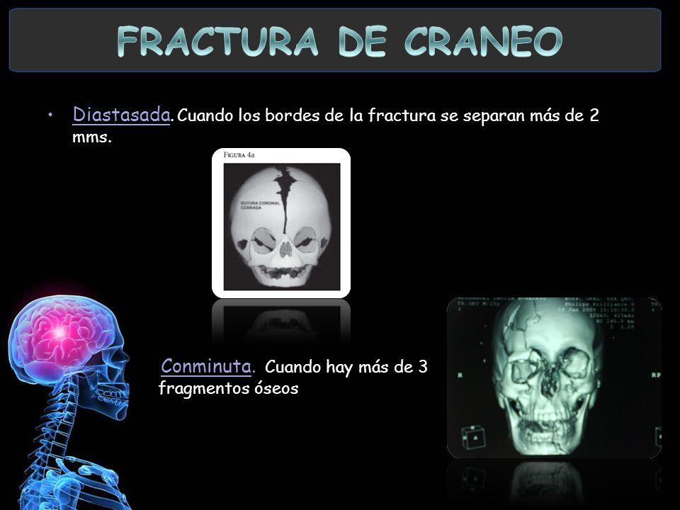 FRACTURA DE CRANEO Diastasada. Cuando los bordes de la fractura se separan más de 2 mms.