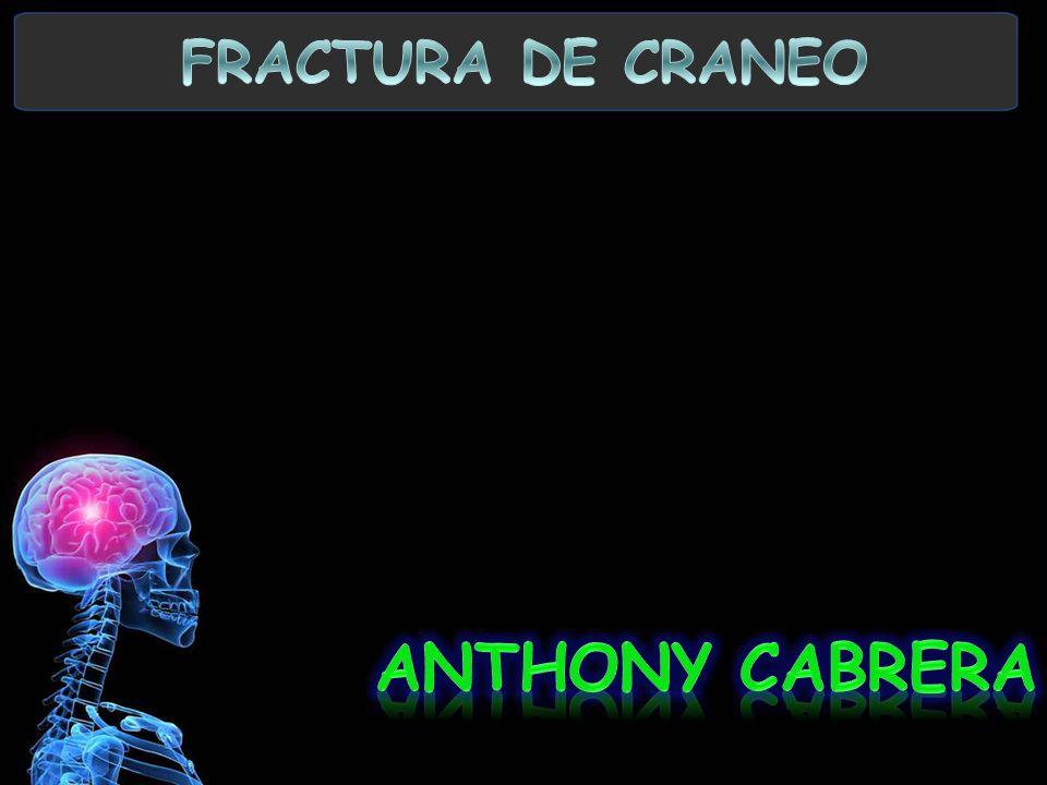 FRACTURA DE CRANEO ANTHONY CABRERA