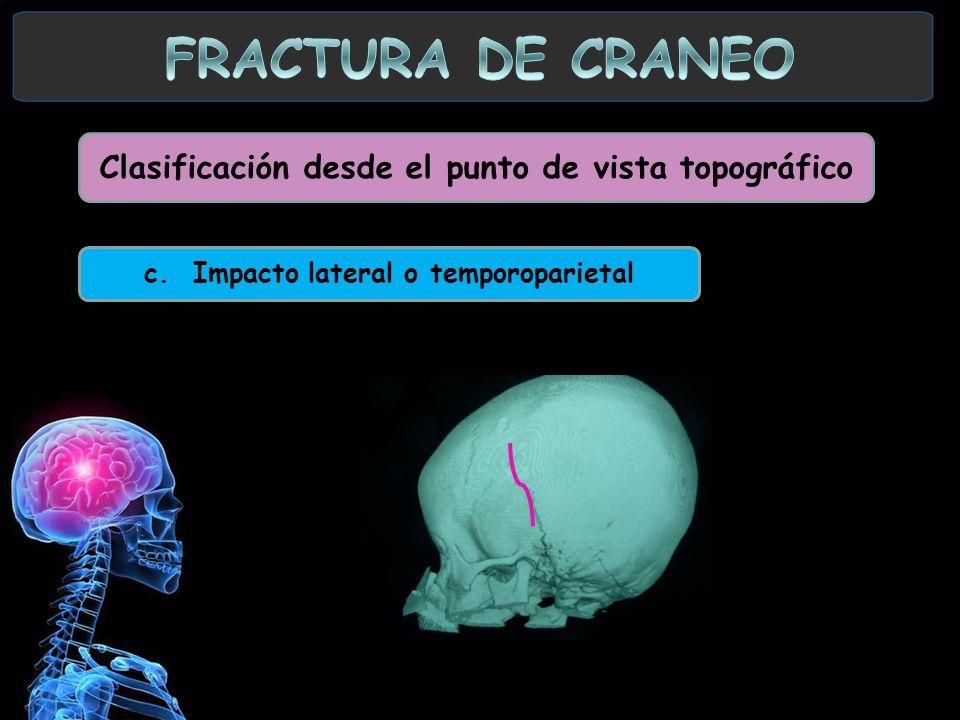 FRACTURA DE CRANEO Clasificación desde el punto de vista topográfico