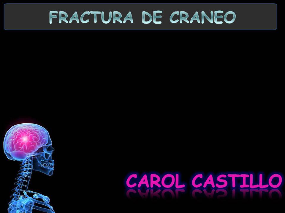 FRACTURA DE CRANEO CAROL CASTILLO