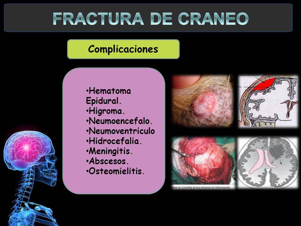 FRACTURA DE CRANEO Complicaciones Hematoma Epidural. Higroma.
