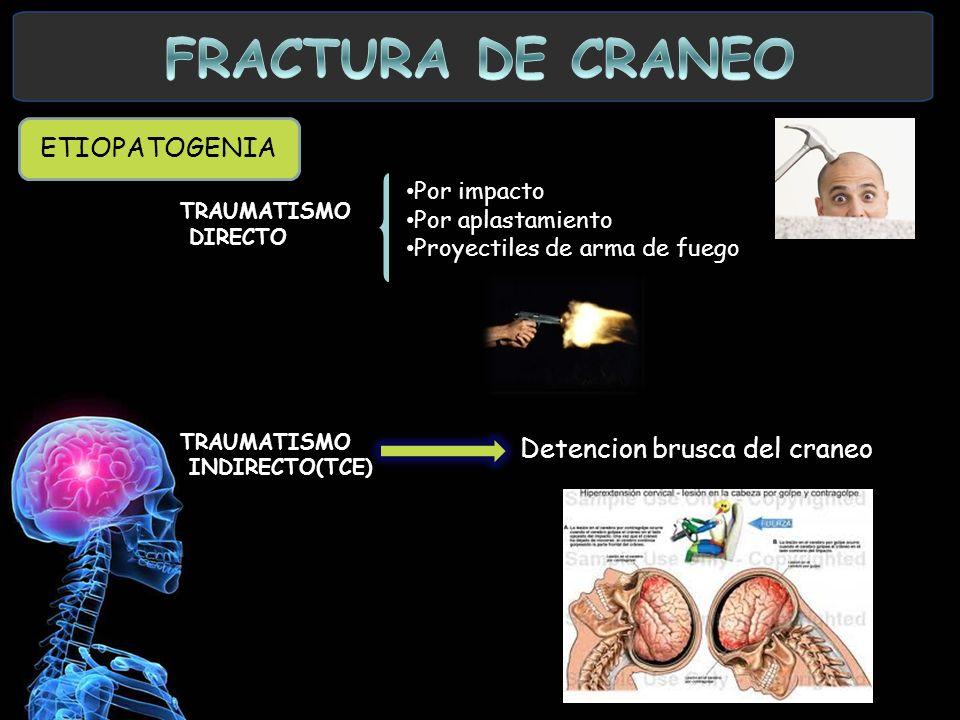 FRACTURA DE CRANEO ETIOPATOGENIA Detencion brusca del craneo