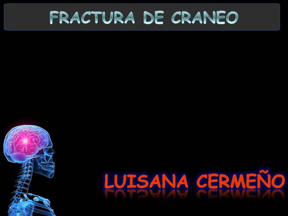 FRACTURA DE CRANEO LUISANA CERMEÑO