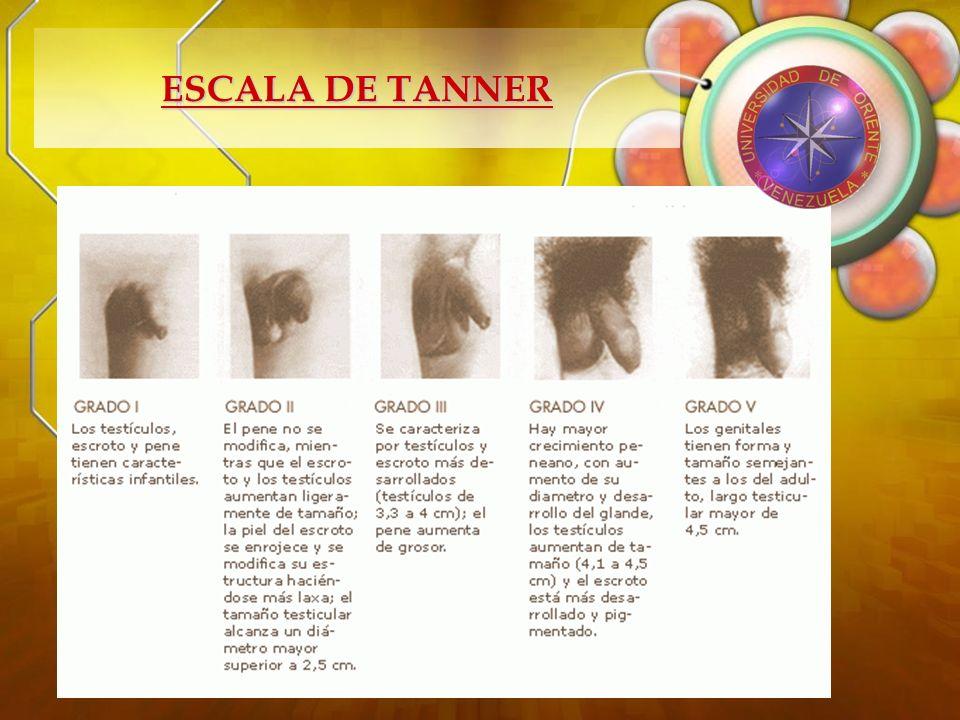 ESCALA DE TANNER