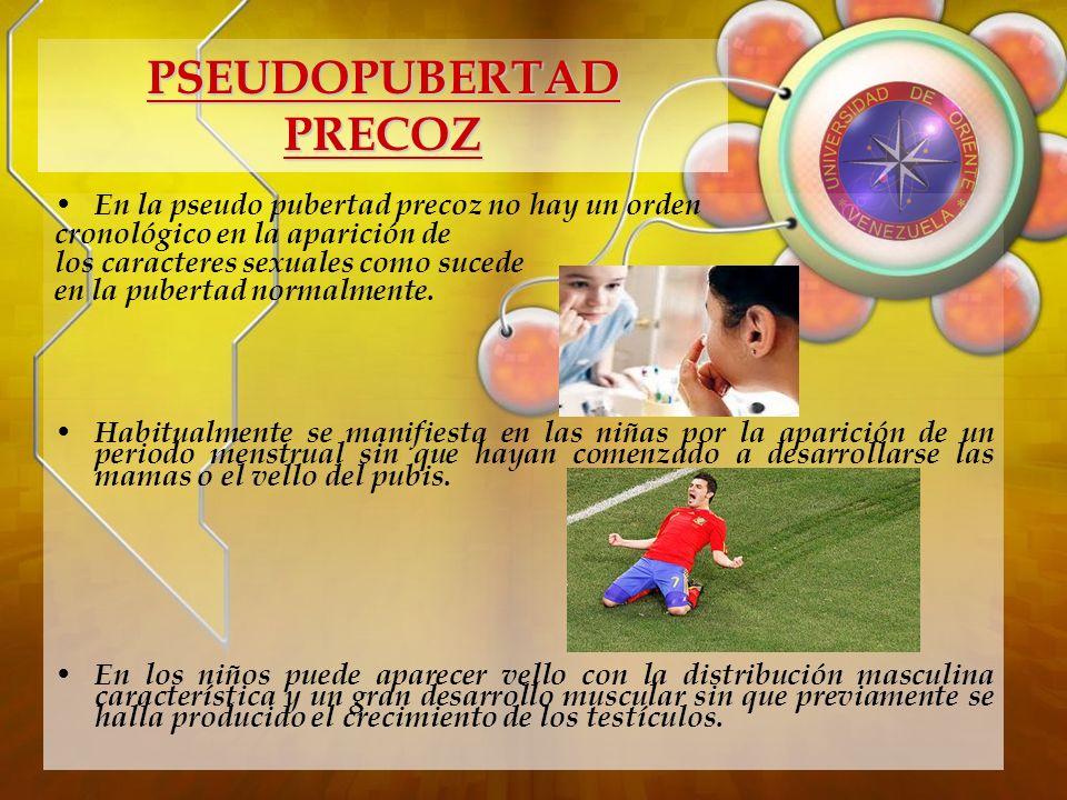 PSEUDOPUBERTAD PRECOZ