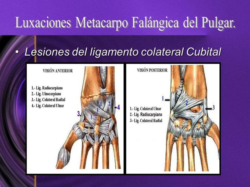 Luxaciones Metacarpo Falángica del Pulgar.