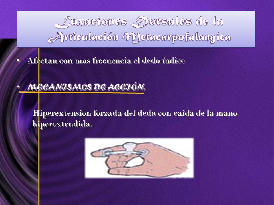 Luxaciones Dorsales de la Articulación Metacarpofalangica