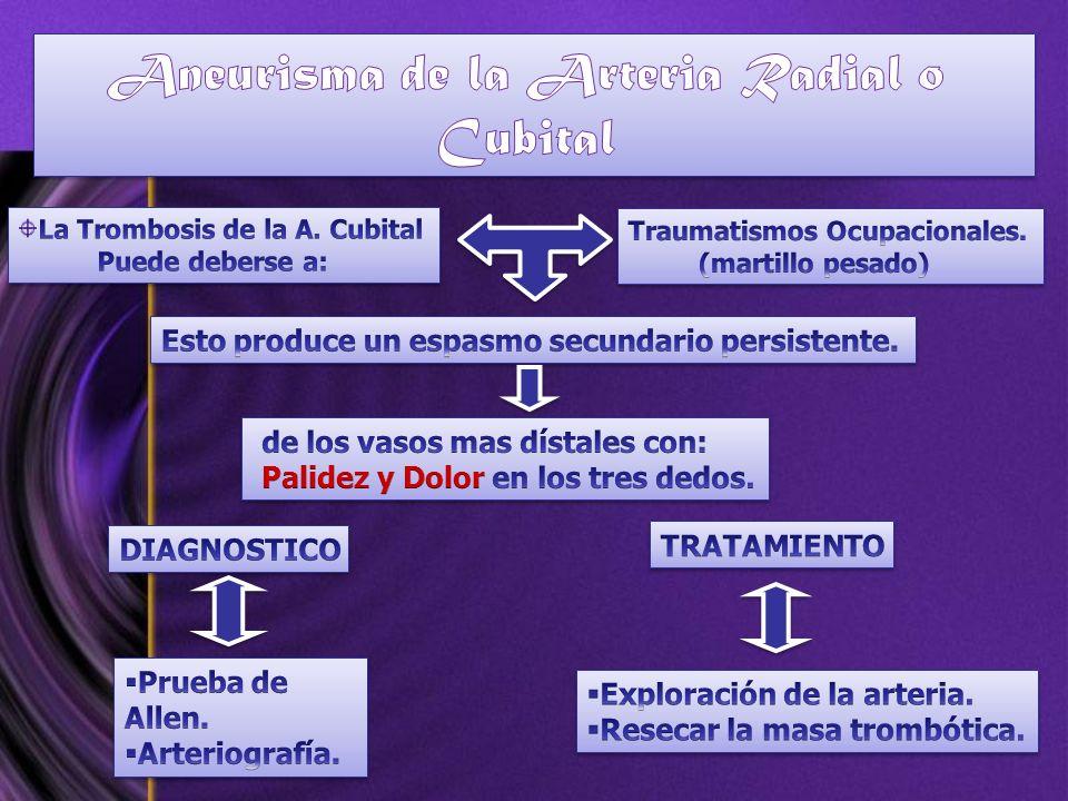 Aneurisma de la Arteria Radial o Cubital