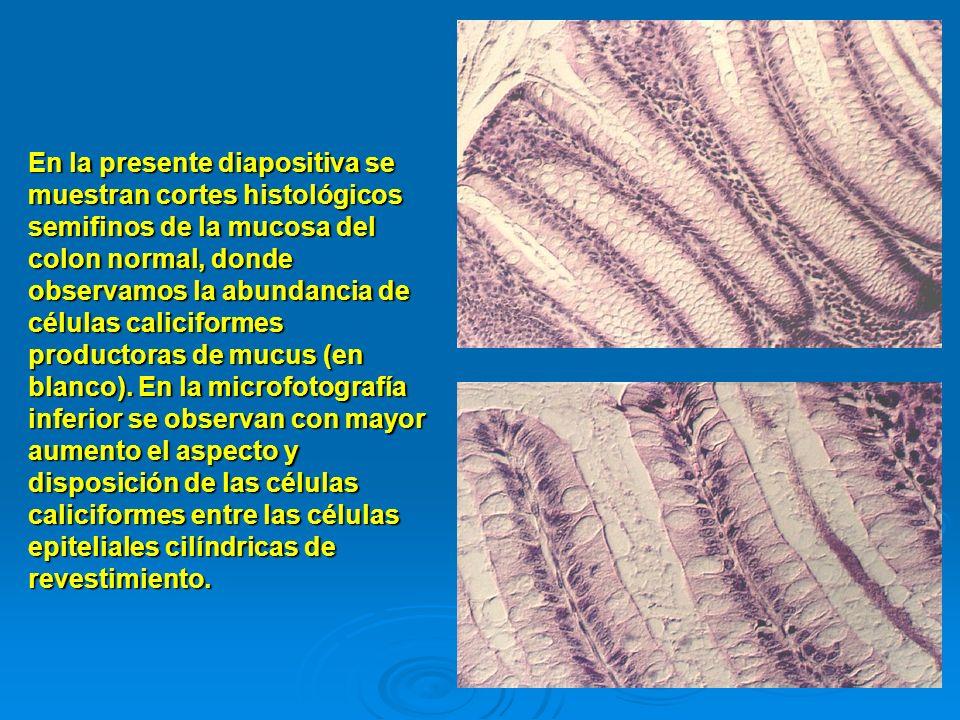 En la presente diapositiva se muestran cortes histológicos semifinos de la mucosa del colon normal, donde observamos la abundancia de células caliciformes productoras de mucus (en blanco).