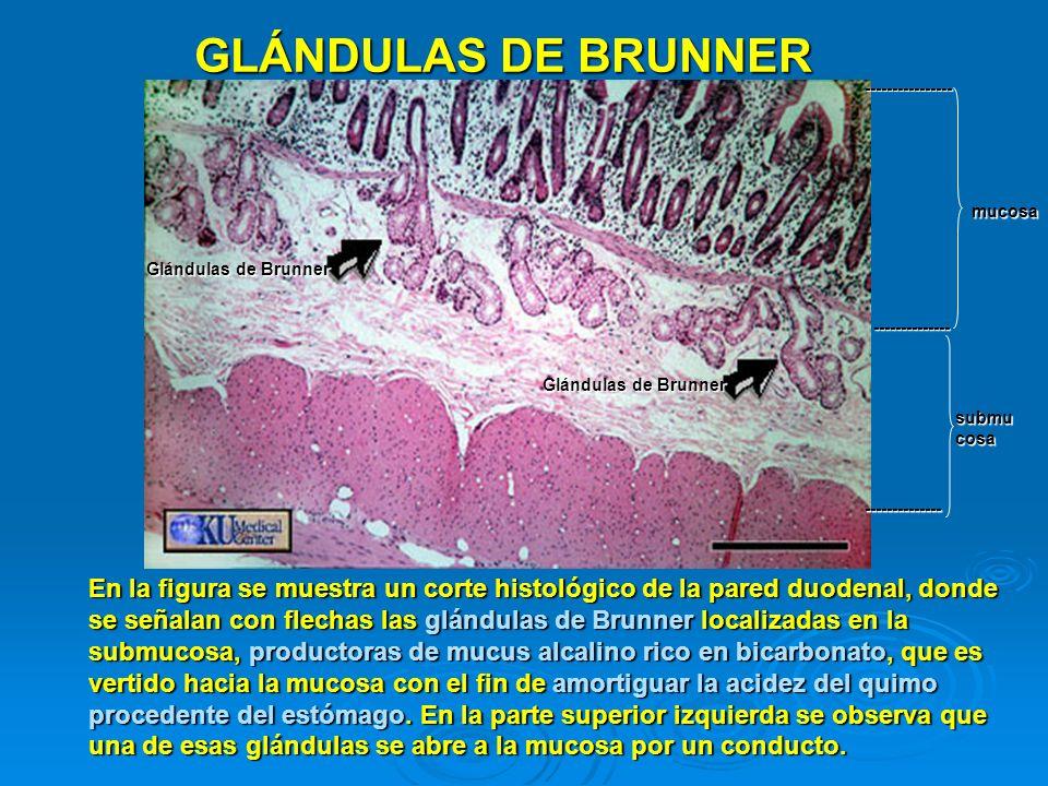 GLÁNDULAS DE BRUNNER ---------------- mucosa. Glándulas de Brunner. -------------- Glándulas de Brunner.