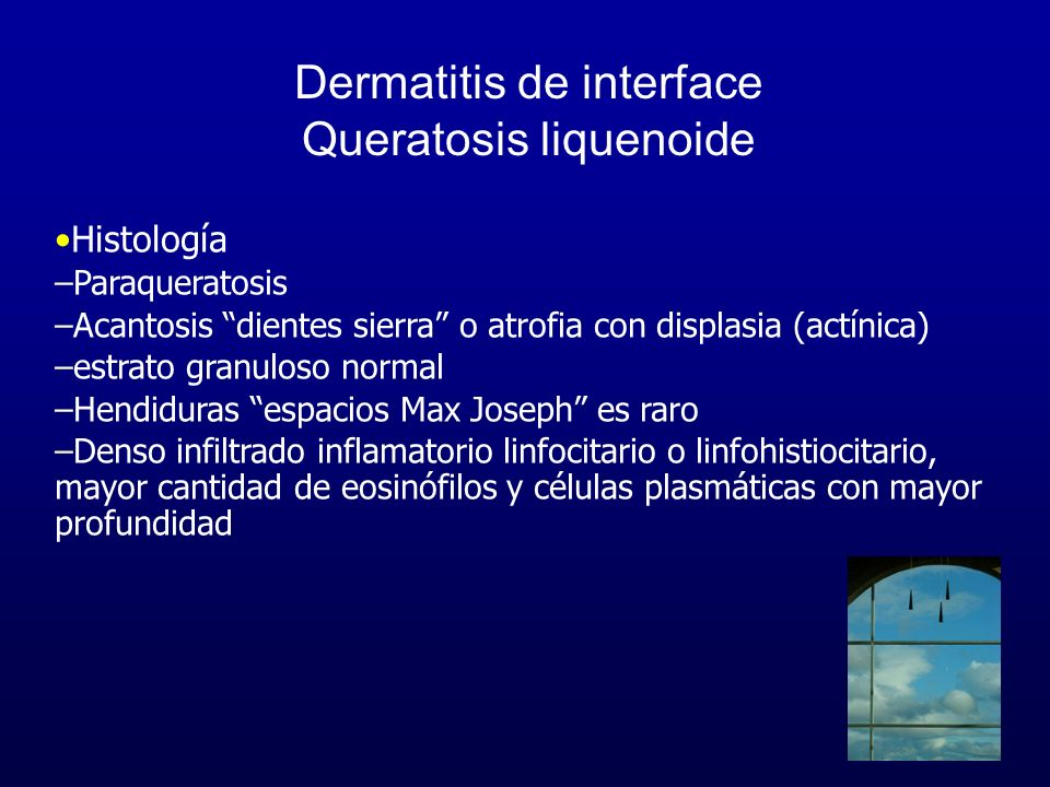 Dermatitis de interface Queratosis liquenoide