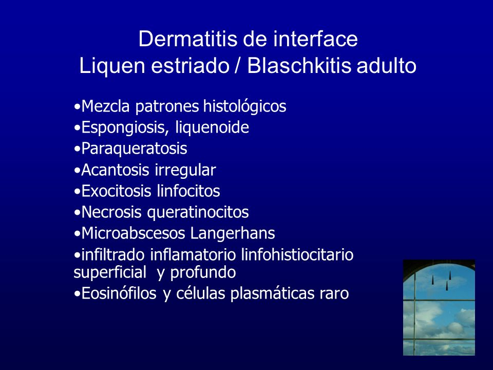 Dermatitis de interface Liquen estriado / Blaschkitis adulto