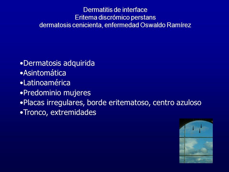 Placas irregulares, borde eritematoso, centro azuloso