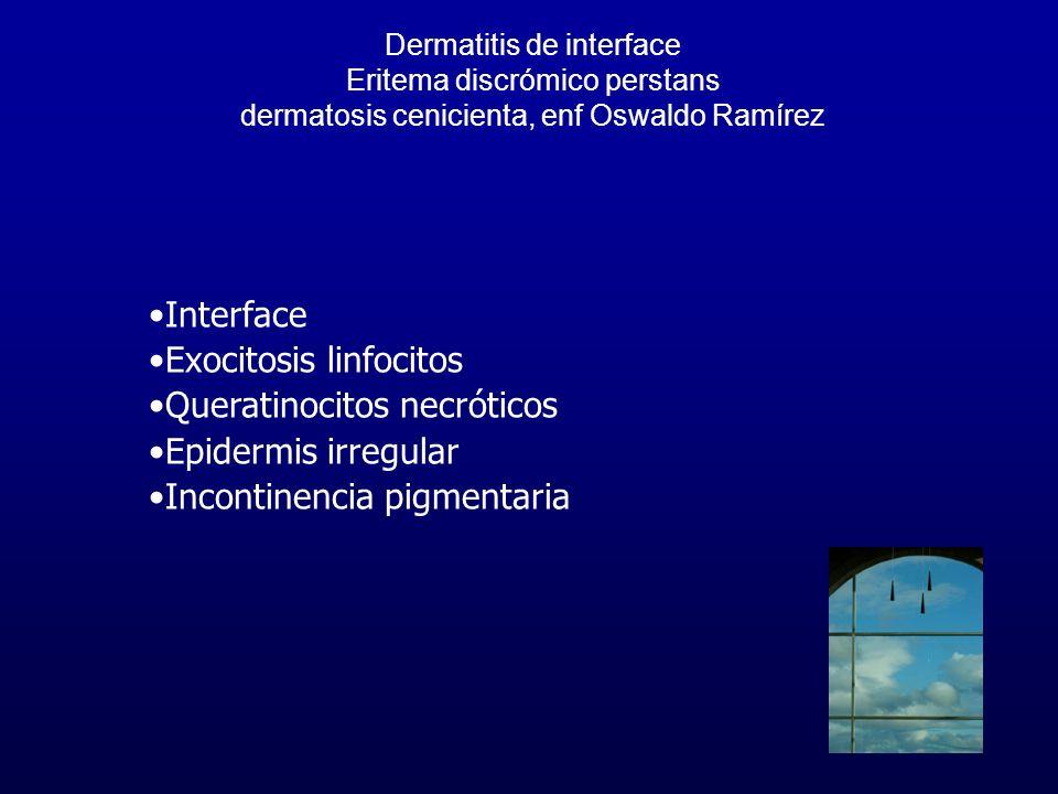 Exocitosis linfocitos Queratinocitos necróticos Epidermis irregular