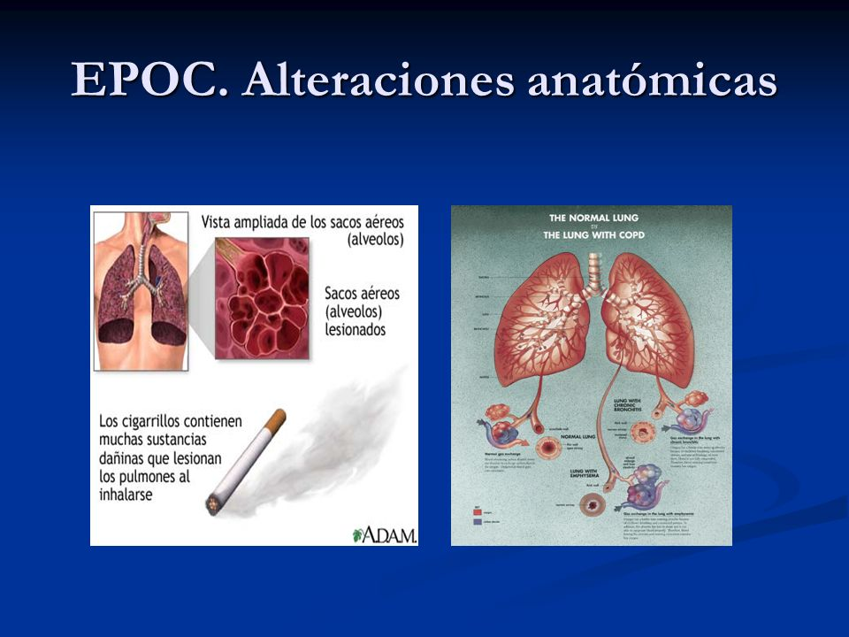 EPOC. Alteraciones anatómicas