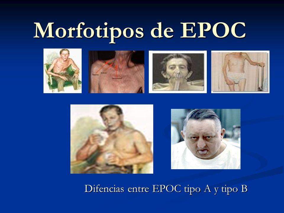 Difencias entre EPOC tipo A y tipo B