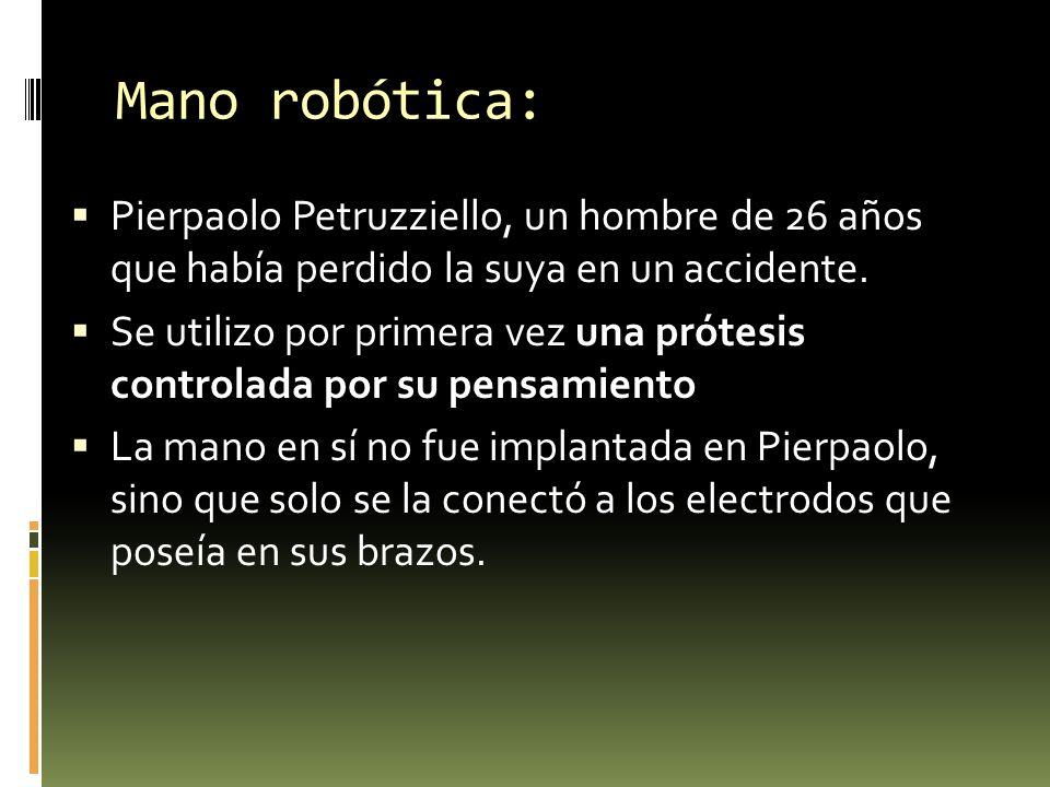 Mano robótica: Pierpaolo Petruzziello, un hombre de 26 años que había perdido la suya en un accidente.