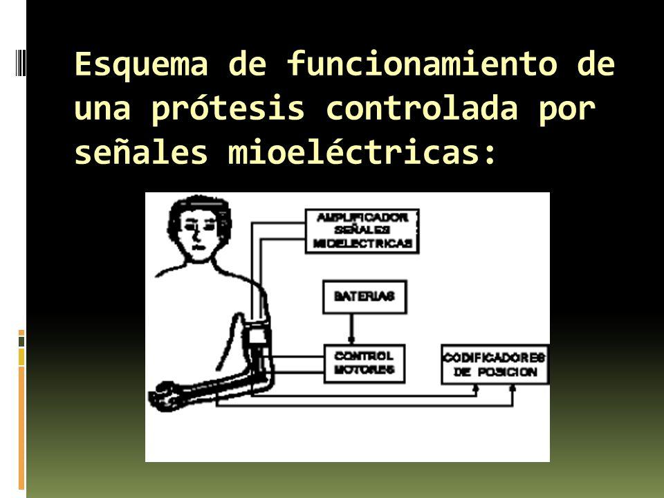Esquema de funcionamiento de una prótesis controlada por señales mioeléctricas: