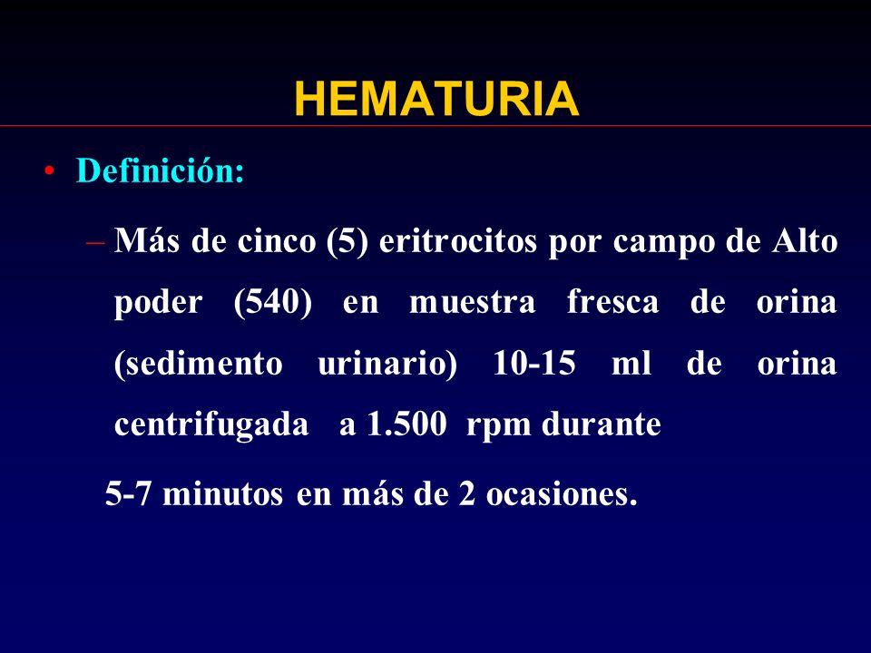HEMATURIA Definición: