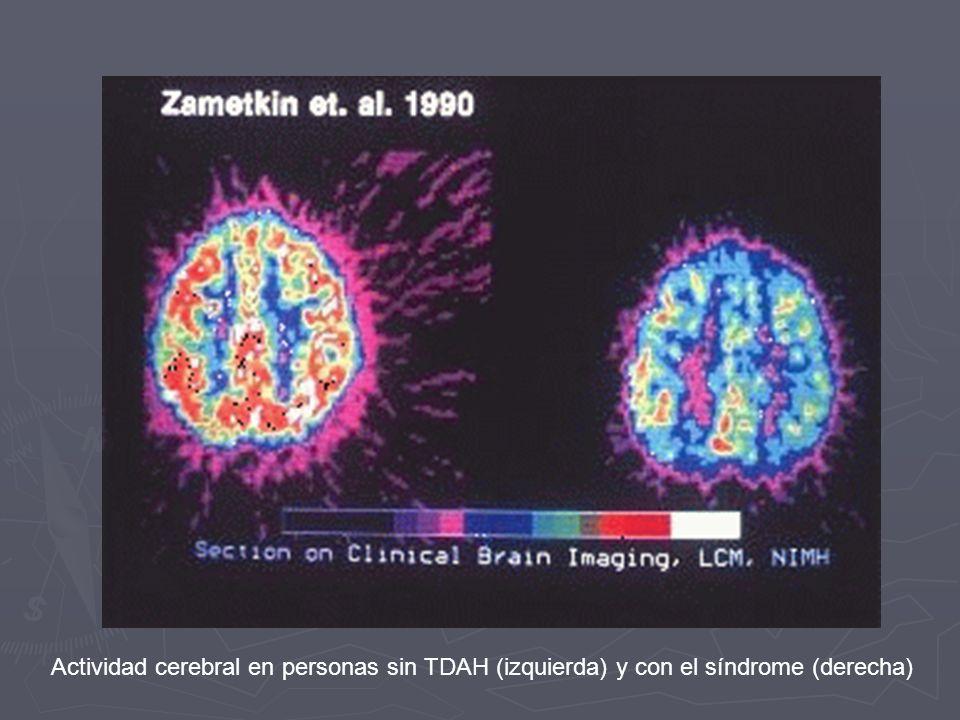 Actividad cerebral en personas sin TDAH (izquierda) y con el síndrome (derecha)
