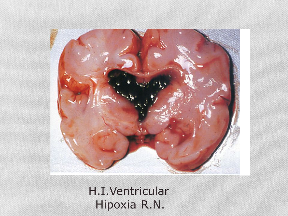 H.I.Ventricular Hipoxia R.N.