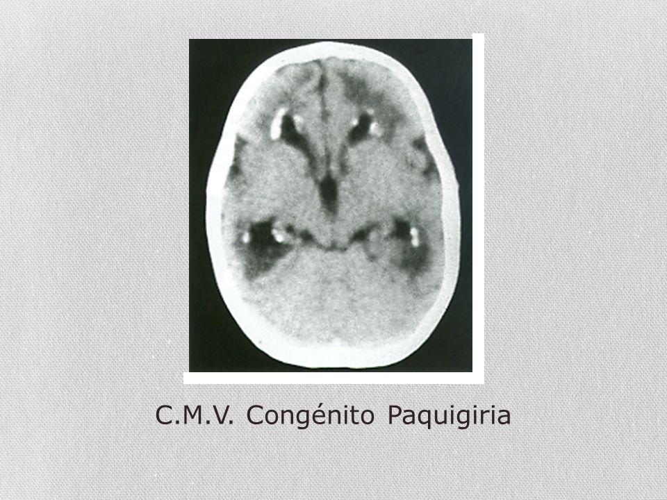 C.M.V. Congénito Paquigiria