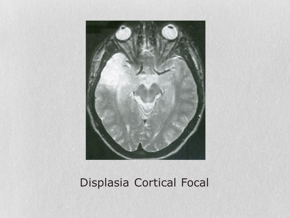 Displasia Cortical Focal