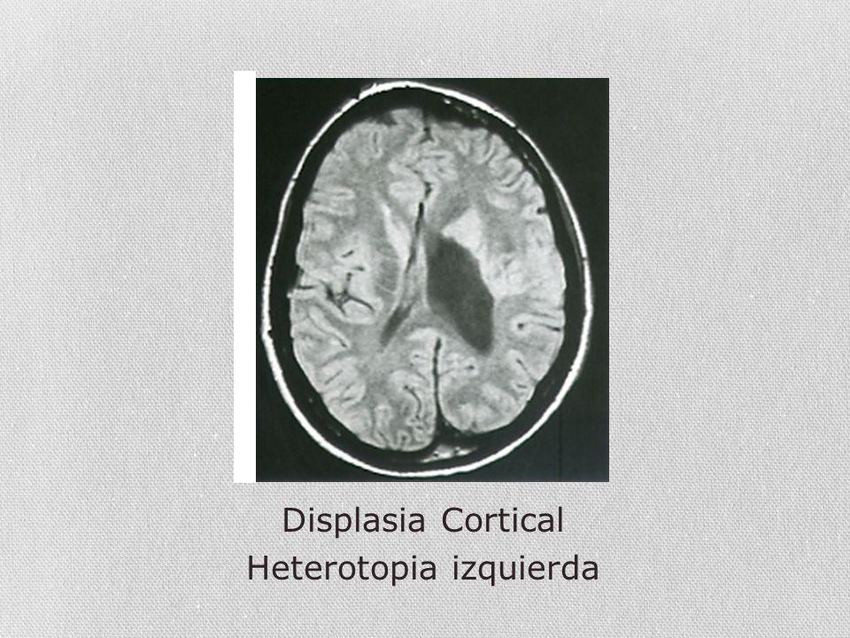 Heterotopia izquierda
