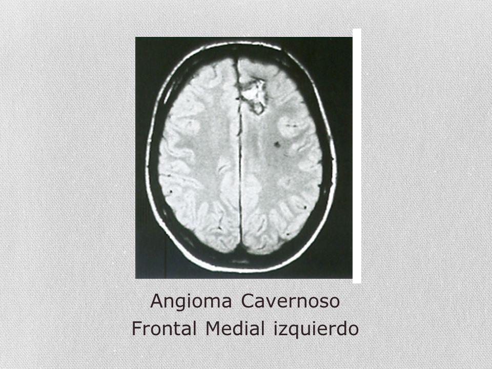 Frontal Medial izquierdo