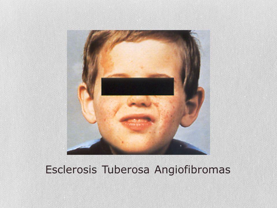 Esclerosis Tuberosa Angiofibromas