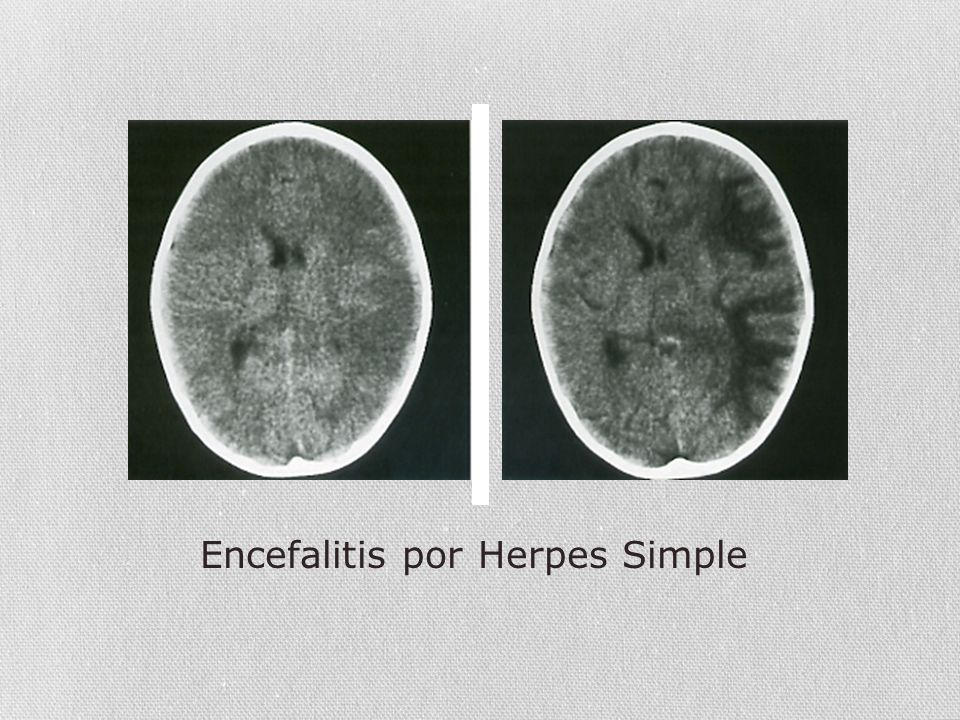 Encefalitis por Herpes Simple