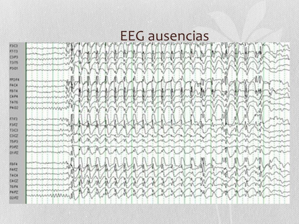 EEG ausencias