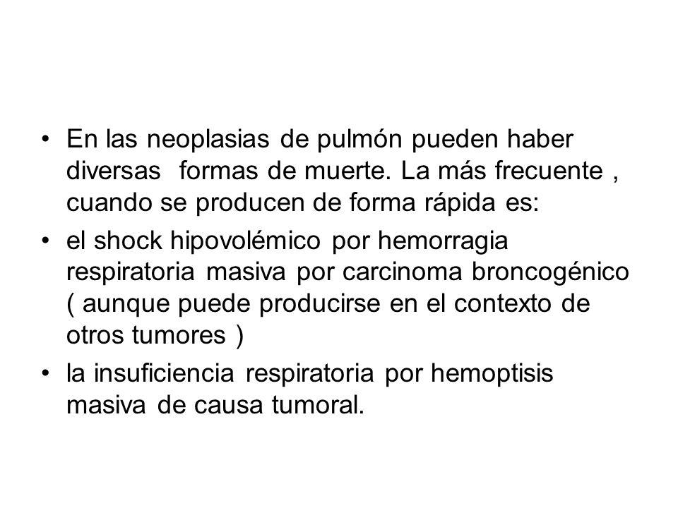 En las neoplasias de pulmón pueden haber diversas formas de muerte