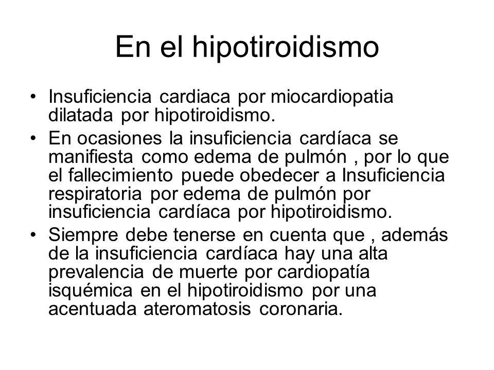 En el hipotiroidismo Insuficiencia cardiaca por miocardiopatia dilatada por hipotiroidismo.