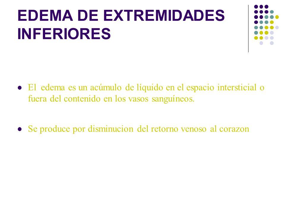 EDEMA DE EXTREMIDADES INFERIORES
