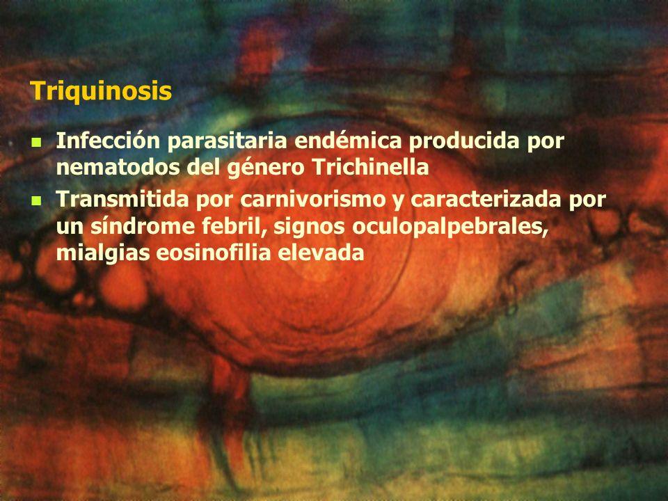 Triquinosis Infección parasitaria endémica producida por nematodos del género Trichinella.