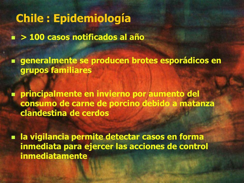 Chile : Epidemiología > 100 casos notificados al año