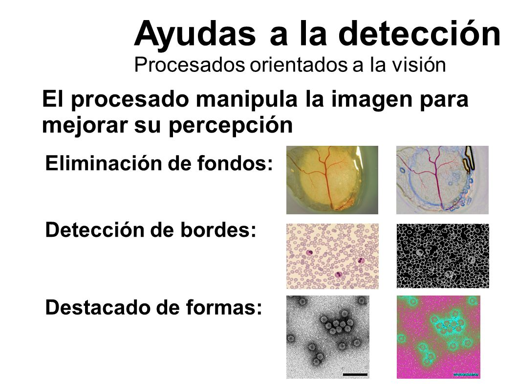 Ayudas a la detección Procesados orientados a la visión. El procesado manipula la imagen para mejorar su percepción.
