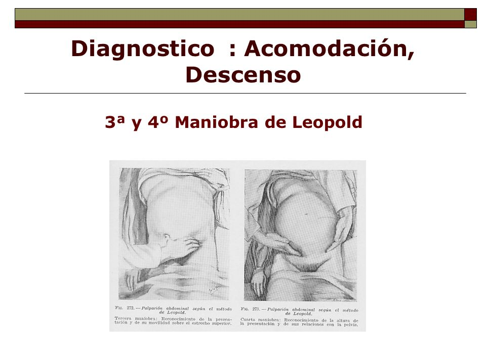 Diagnostico : Acomodación, Descenso