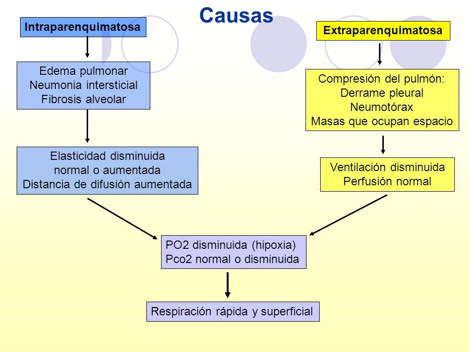 Causas Intraparenquimatosa Extraparenquimatosa Edema pulmonar