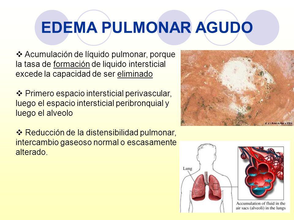 EDEMA PULMONAR AGUDOAcumulación de líquido pulmonar, porque la tasa de formación de liquido intersticial excede la capacidad de ser eliminado.