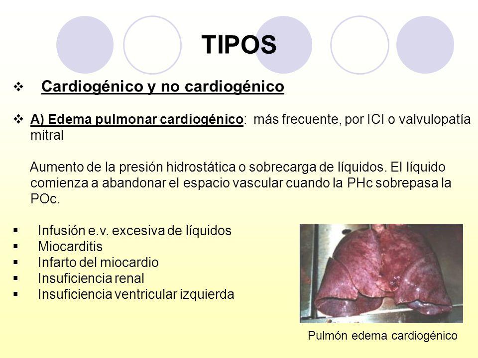 TIPOS Cardiogénico y no cardiogénico
