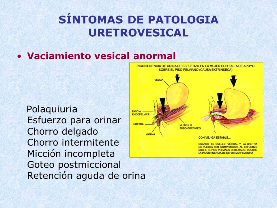 SÍNTOMAS DE PATOLOGIA URETROVESICAL