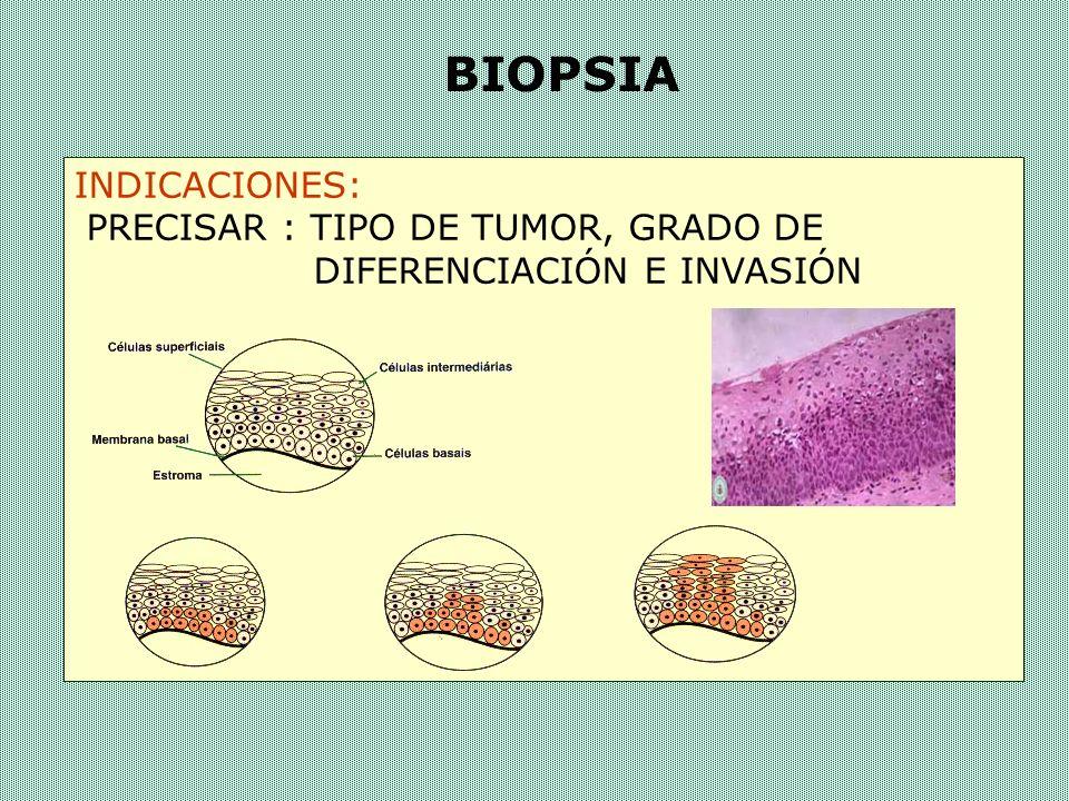 BIOPSIA INDICACIONES: PRECISAR : TIPO DE TUMOR, GRADO DE