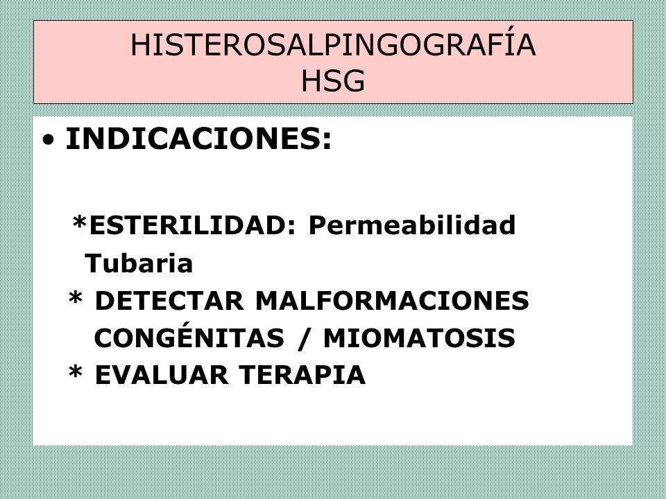 HISTEROSALPINGOGRAFÍA HSG