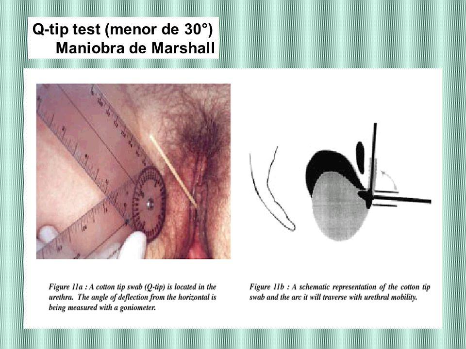 Q-tip test (menor de 30°) Maniobra de Marshall