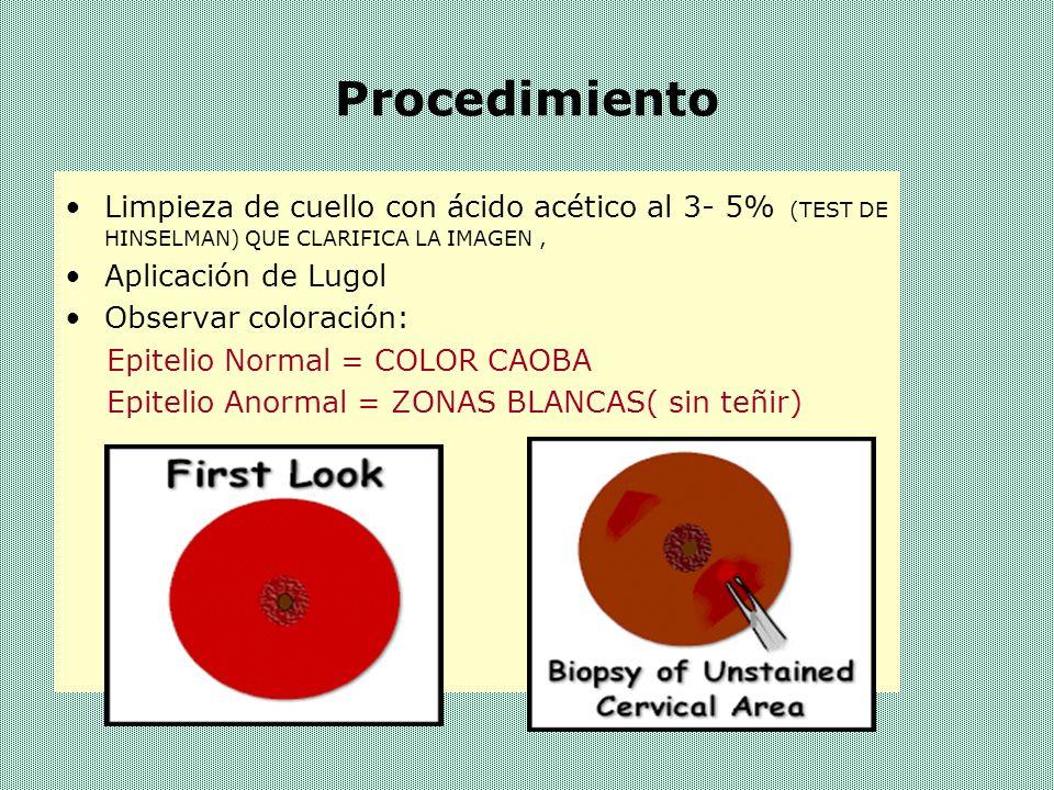 Procedimiento Limpieza de cuello con ácido acético al 3- 5% (TEST DE HINSELMAN) QUE CLARIFICA LA IMAGEN ,