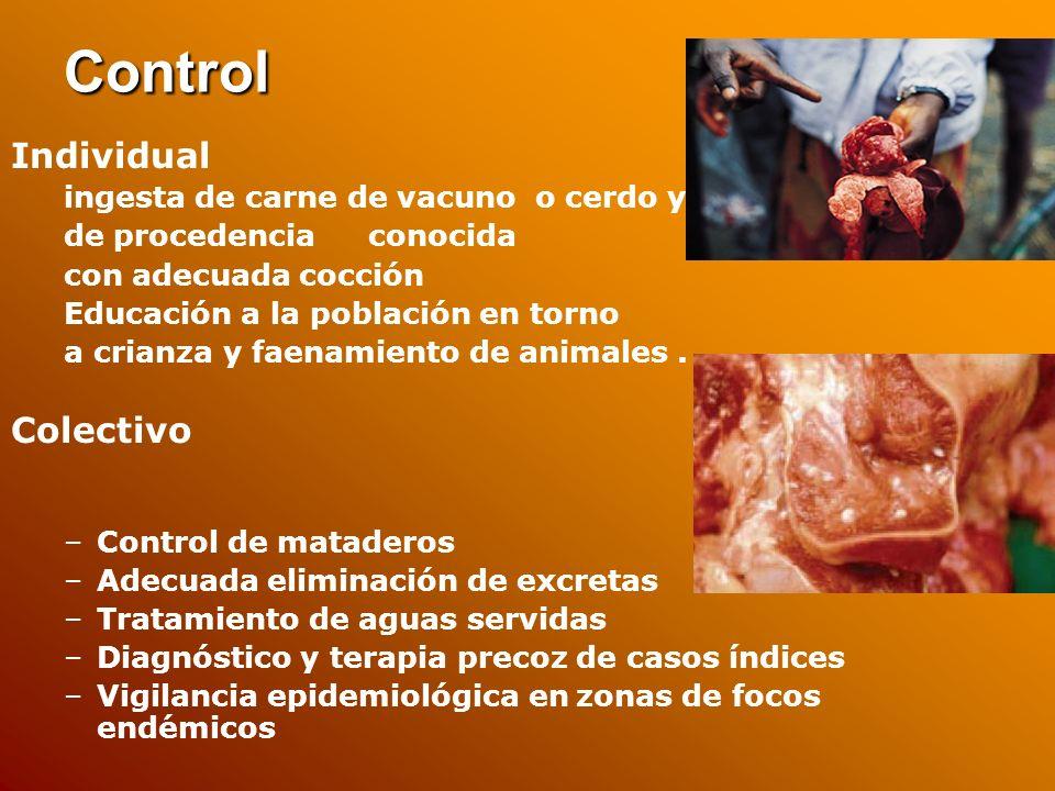 Control Individual Colectivo ingesta de carne de vacuno o cerdo y